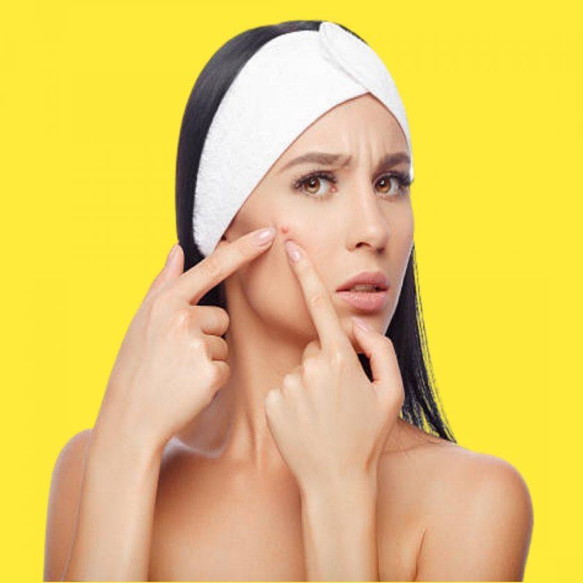Oily skin ki care kaise kare - Tips of oily skin and acne